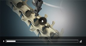 Patient Education Videos of Ryan Stuckey, MD - Board Certified Orthopedic Surgeon - Spine Specialist